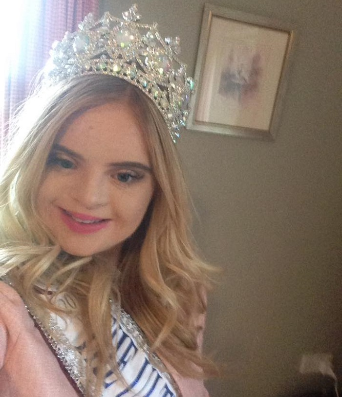 first teenager with down's syndrome wins beauty competition - kate grant